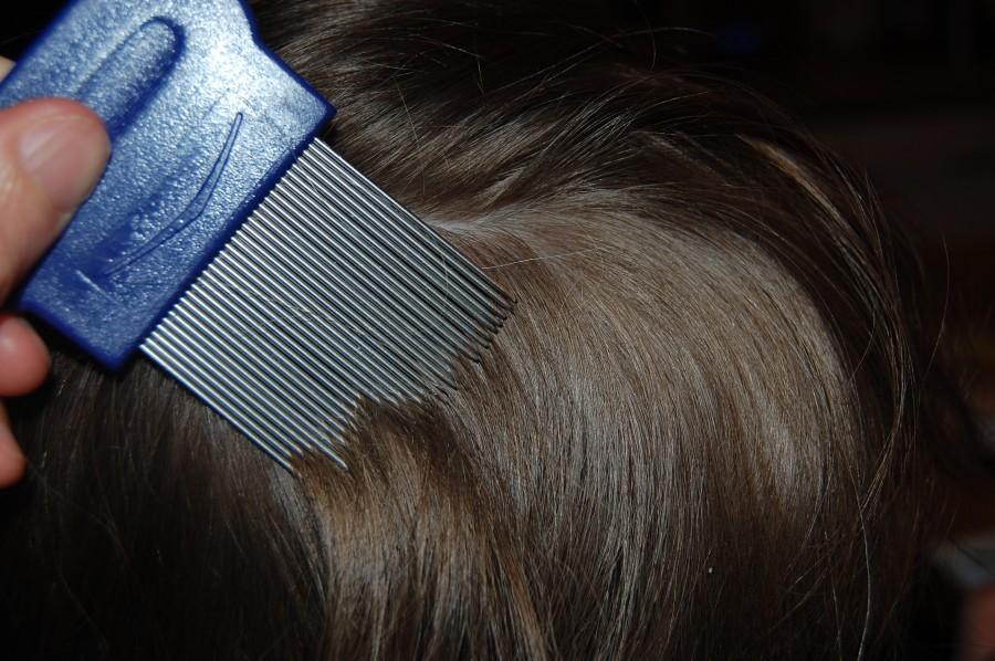 Cara Mudah Menghilangkan Kutu Rambut Secara Alami